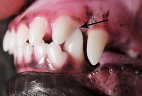 Malocclusion of lower canine and upper incisor